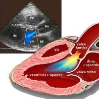 Treinamento Individualizado em Ecodopplercardiograma